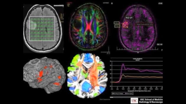 VIDEO-levolution-des-neurosciences